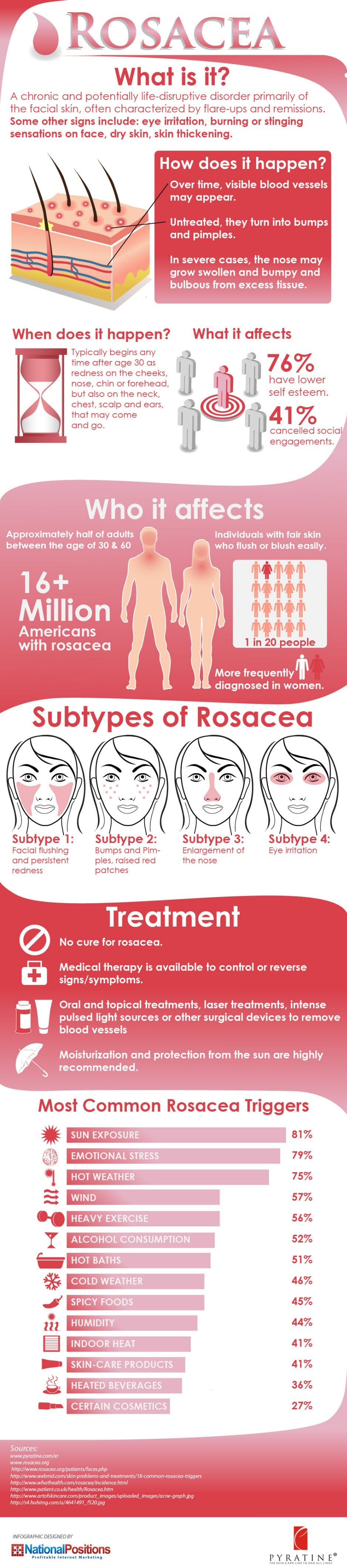 What Causes Rosacea? (Infographic)